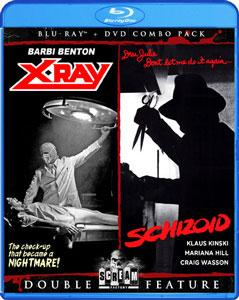 X-Ray/Schizoid Double Feature