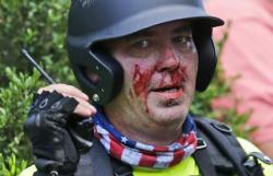 Chalottesville, Virginia Rocked by Violence at White Nationalist Protest, 1 Arrest