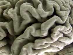 A closeup of a human brain affected by Alzheimer's disease on display at the Museum of Neuroanatomy at the University at Buffalo in Buffalo, N.Y.