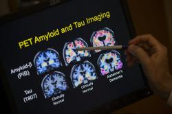 In this May 19, 2015, file photo, a doctor points to PET scan results that are part of a study on Alzheimer's disease at a hospital in Washington