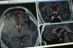 This Monday, Oct. 29, 2018 photo shows a brain scan of a methamphetamine addict with the path of electrodes that doctors at Ruijin Hospital in Shanghai, China implanted to stimulate an area of the brain associated with addiction