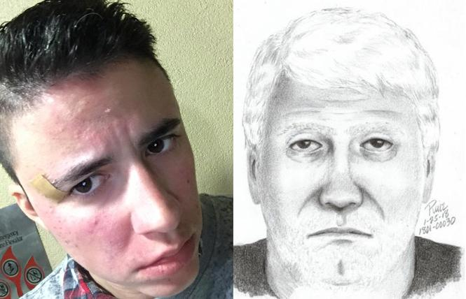RIGHT: DeeJea Smith shows his injuries after being attacked. Photo: Courtesy Facebook  LEFT: Sketch of suspect