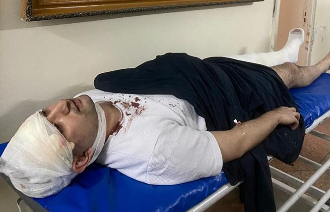 Uzbek activist and LGBTQ ally Miraziz Bazarov is shown on a hospital bed after being severely beaten outside his home in Tashkent March 28 Photo: Courtesy Pink News