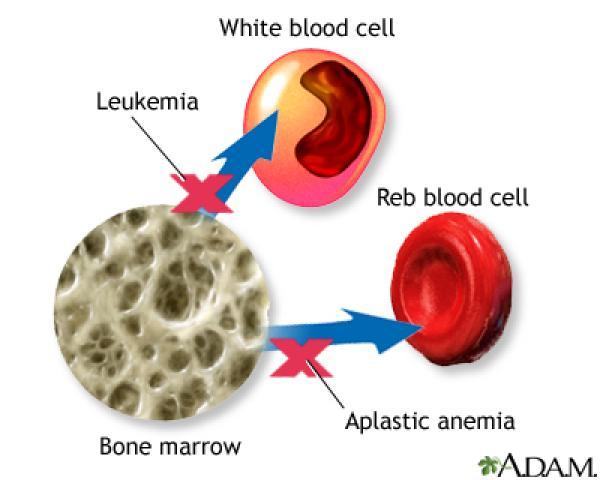 leukemia bone marrow transplant
