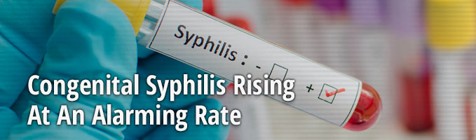 Congenital Syphilis Rising At An Alarming Rate