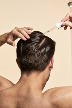 Fighting Hair Loss is a Young Man's Game (too)