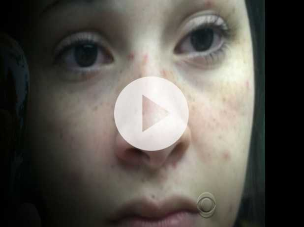 Young Heroin Addict Films Her Own Detox