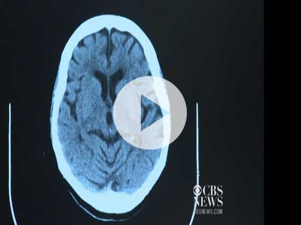 Prostate Cancer Treatment Linked to Alzheimer's