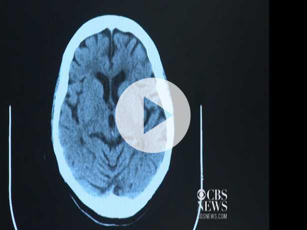 Prostate Cancer Treatment Linked to Alzheimer's