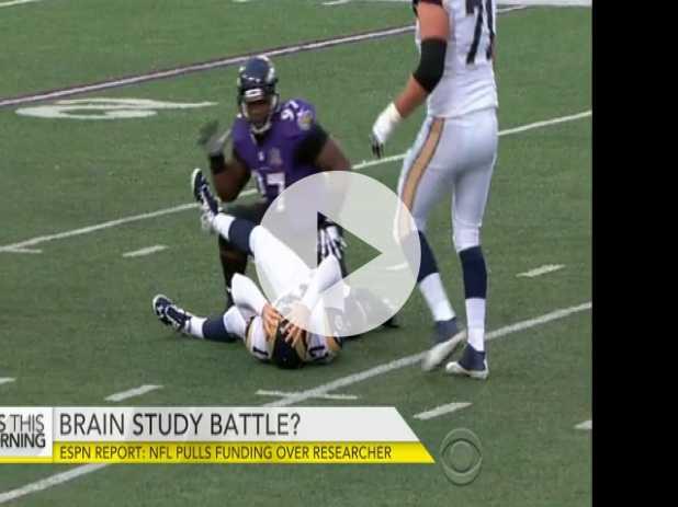 ESPN: NFL Pulls CTE Brain Study Funding Over Researcher