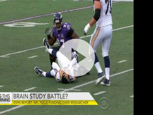 ESPN: NFL Pulls CTE Brain Study Funding Over Researcher
