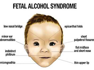 Blood Test May Help Identify Fetal Alcohol Spectrum Disorders