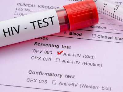 Study Suggests STI Testing and Treatment as Part of PrEP Care May Reduce Bacterial STIs among MSM
