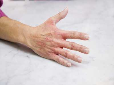 Don't Let Hand Rashes Ruin Your Winter