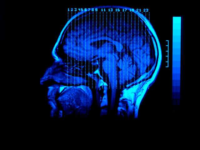 A 'Sci-Fi' Cancer Therapy Fights Brain Tumors, Study Finds