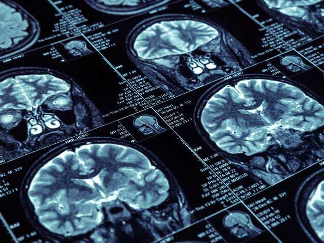 Brain Scans May Change Care for Some People with Memory Loss