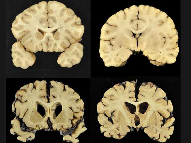 Brain Disease Seen in Most Football Players in Large Report