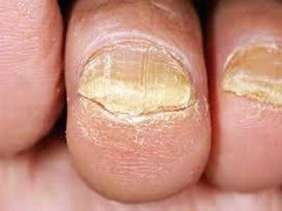 Accurate Diagnosis Should Be First Step in Treating Nail Fungus