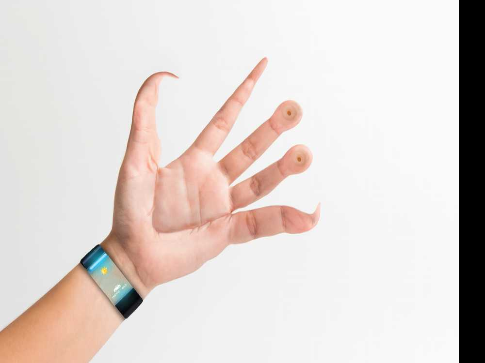 Is This How Hands Would Look If Better Equipped for Smartphone Use?