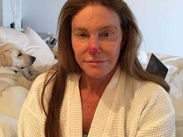 In Instagram Post, Caitlyn Jenner Shows Sun Damage on Nose, Cautions Fans