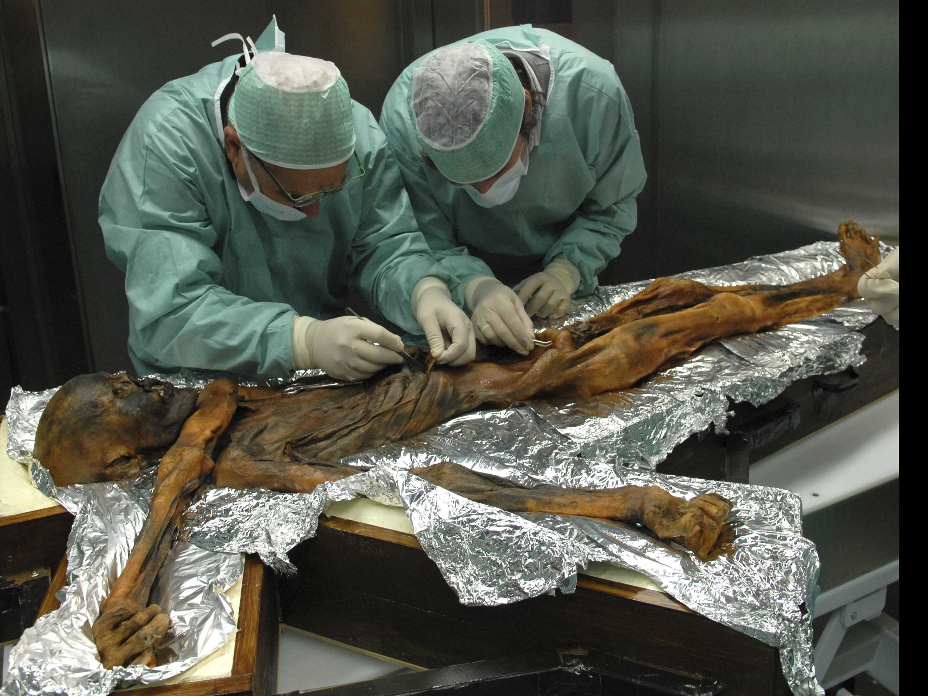 Ancient 'Iceman' Shows Signs of A Well-Balanced Last Meal