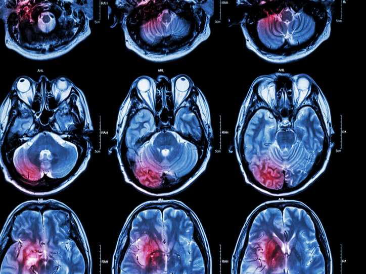 When it Comes to Brain Tumors, a Patient's Sex Matters