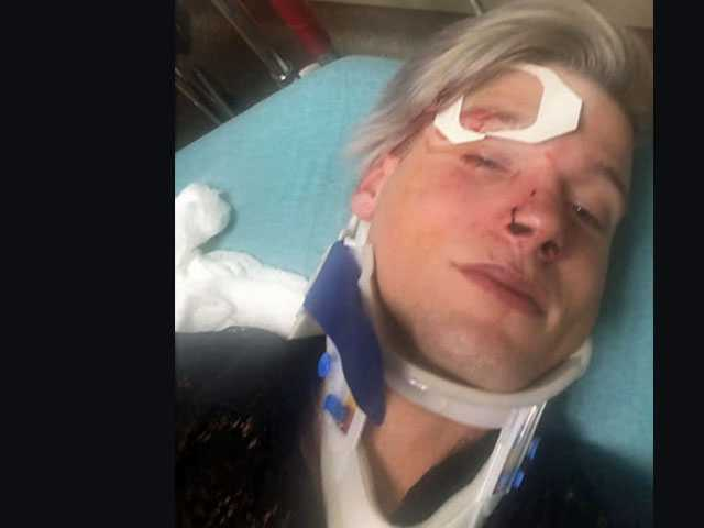 Called 'Faggots,' Couple Beaten After Leaving Austin Club Early Sunday Morning