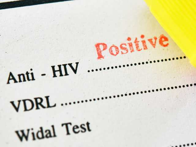 Research Shows STDs Increase Chance of HIV Infection