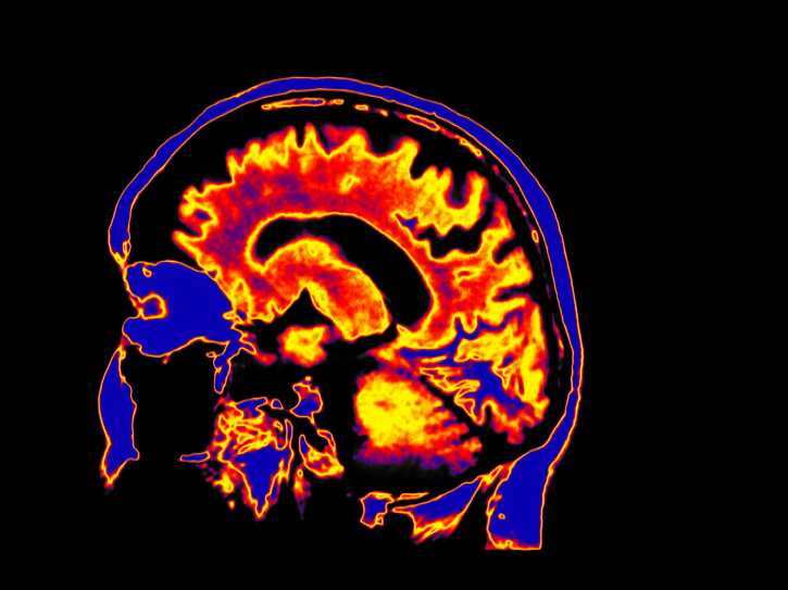 How Brain Scans Shed Light on PTSD